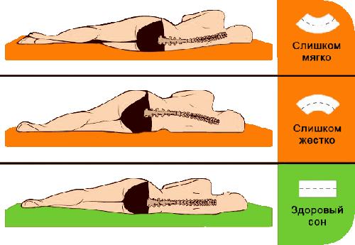 Выбор жесткости матраса при сколиозе