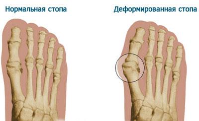 Показания для приобретения ортопедических стелек