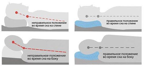 Правильная высота ортопедической подушки