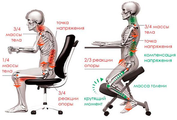 Отличия коленного стула от обычного