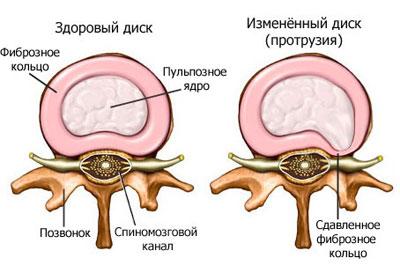 Протрузия диска шейного отдела