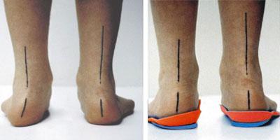 Стельки для коррекции деформации стопы