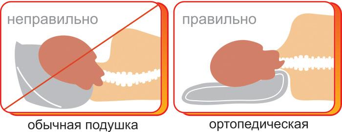 Различия между сном на ортопедической и обычной подушках