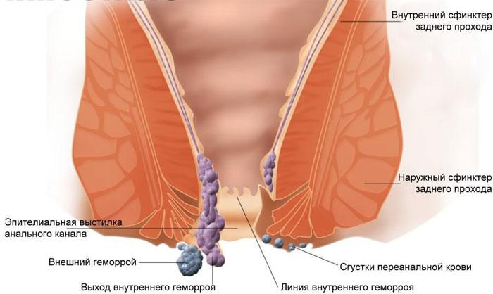 Подушка от геморроя и другие ортопедические средства для сидения