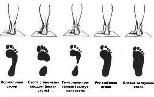 Показания для ношения ортопедической обуви