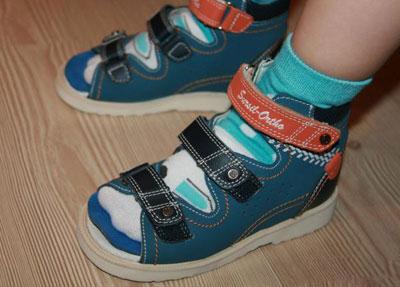 Антивальгусные сандалии на ребенке