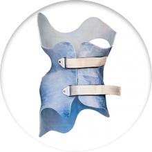Корсет Шено - лечение сколиоза - фото