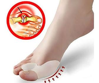 Как выбрать бандаж для косточки на большом пальце ноги - фото